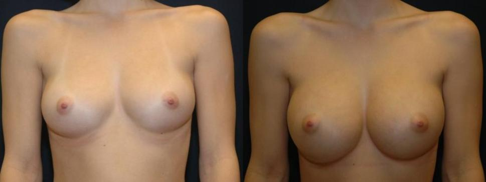 Front view of a woman before and after breast augmentation at our Eugene, OR, practice, taking her size from a B cup to a C cup.