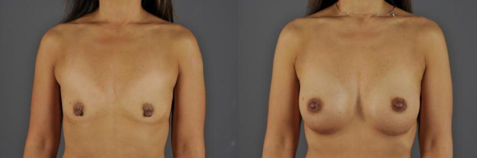 Before-and-after photos of a woman who had breast augmentation at Jewell Plastic Surgery in Eugene, OR.
