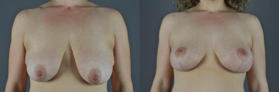 Breast Lift Before & After Photo | Eugene & Salem, OR | Mark L. Jewell, MD